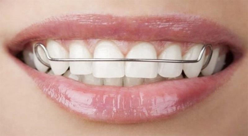 Niềng răng sử dụng dây thép tại nhà