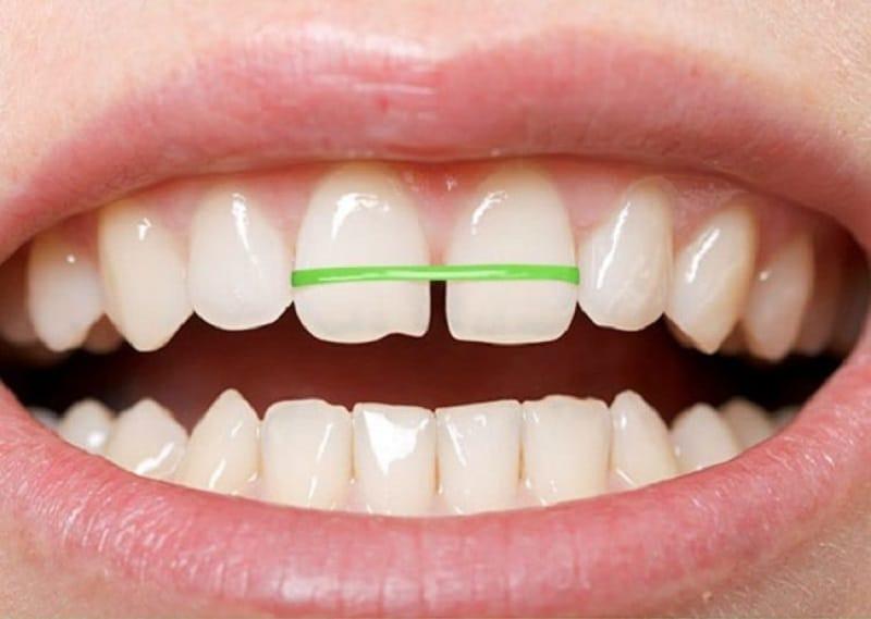 Niềng răng tại nhà rất tiết kiệm chi phí