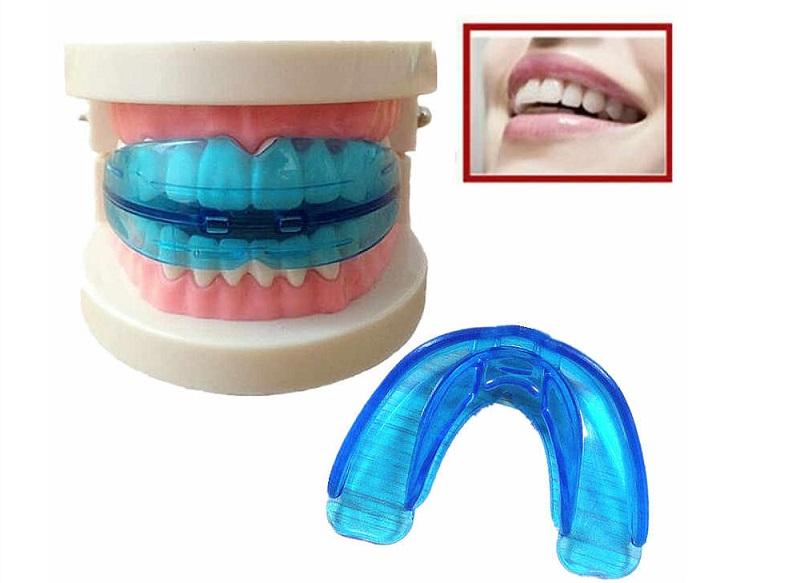 Phương pháp niềng răng bằng Silicon trainer