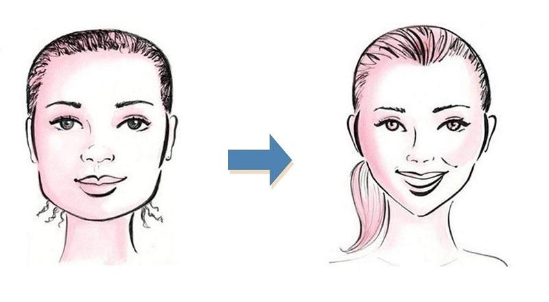 Niềng răng giúp thay đổi khuôn mặt tạo cằm V-line