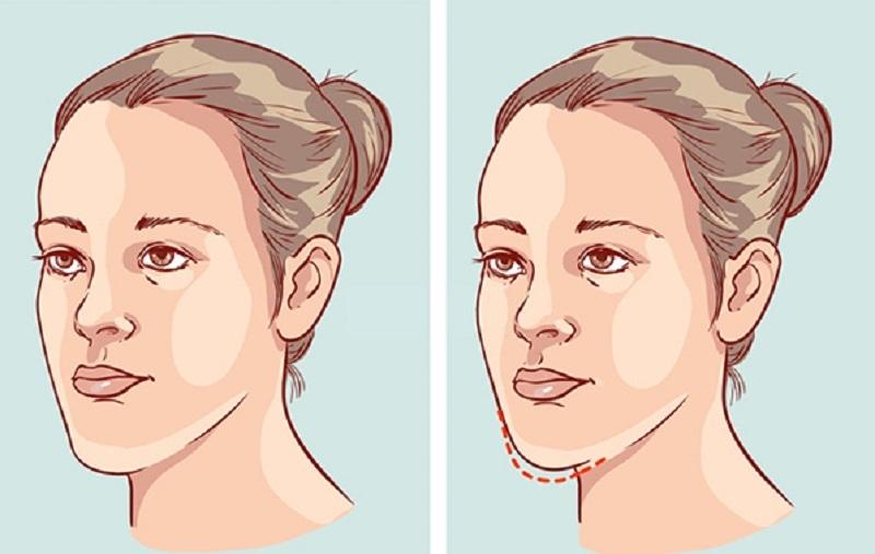Niềng răng thay đổi khuôn mặt chính là phương pháp được ưa chuộng