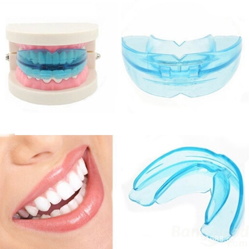 Niềng răng Trainer là phương pháp chỉnh nha khá phổ biến