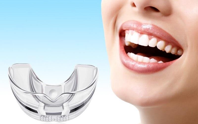 Niềng răng Trainer có thể dùng cho người trưởng thành
