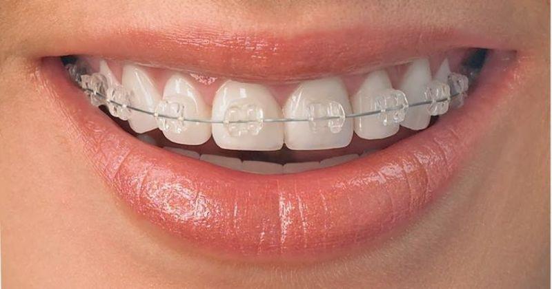 Việc niềng răng mang lại nhiều thay đổi cho khuôn mặt