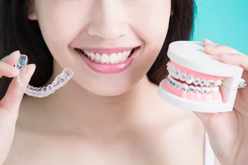 Chi phí niềng răng tùy từng trường hợp