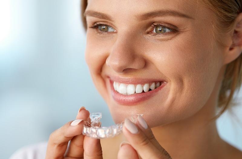 Niềng răng vô hình còn được biết đến với tên gọi niềng răng không mắc cài