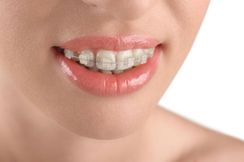 Niềng răng hô giúp cải thiện về vấn đề răng miệng