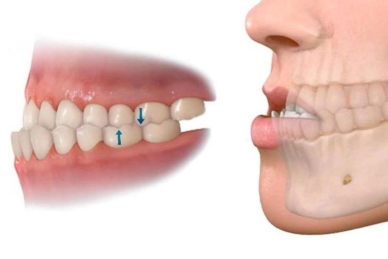 Có rất nhiều nguyên nhân dẫn đến tình trạng niềng răng xong bị hô