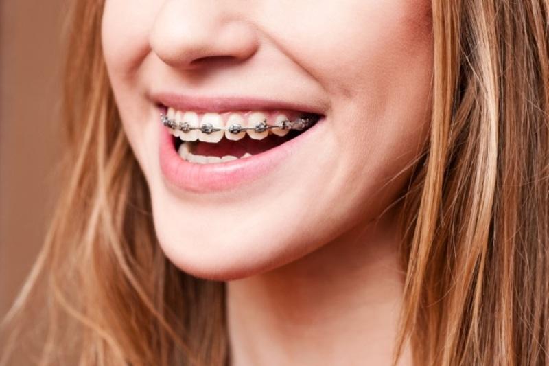Cần phải khắc phục tình trạng này để cải thiện răng miệng