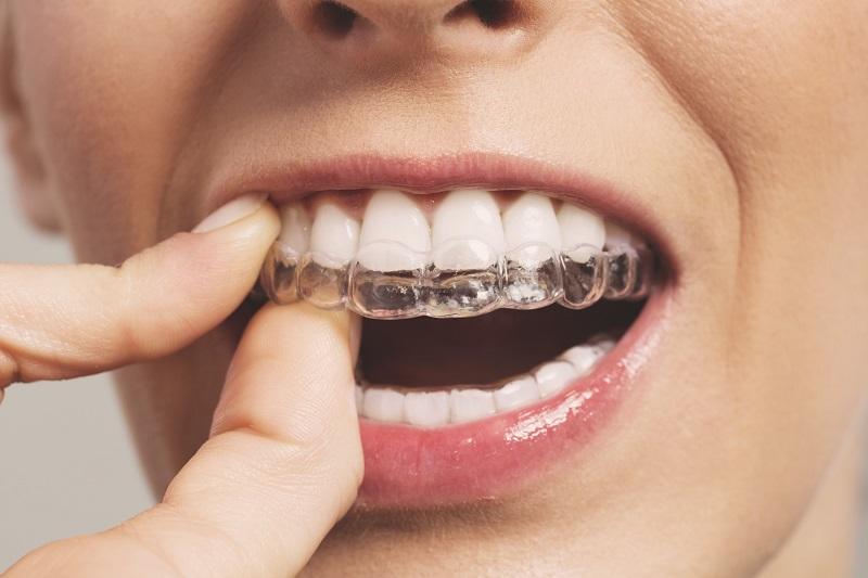 Niềng răng Invisalign giúp bạn tự tin nở nụ cười và thoải mái trong giao tiếp