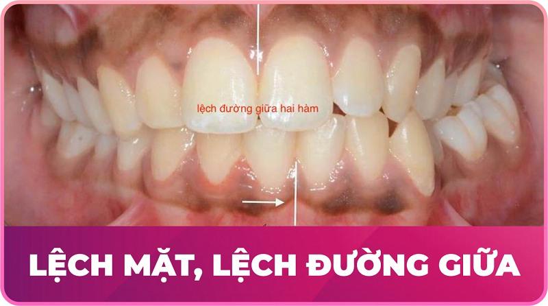 Răng lệch nhân trung là tình trạng sai lệch khớp cắn