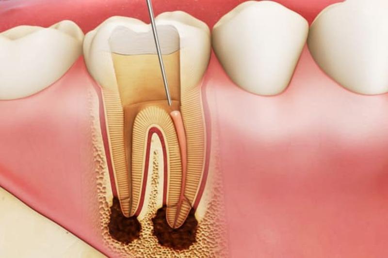 Sâu răng là bệnh phổ biến diễn ra ở cả trẻ em và người lớn