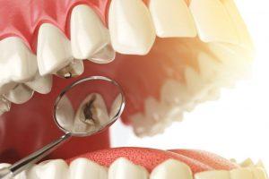 Sâu răng thường diễn ra theo 4 giai đoạn khác nhau