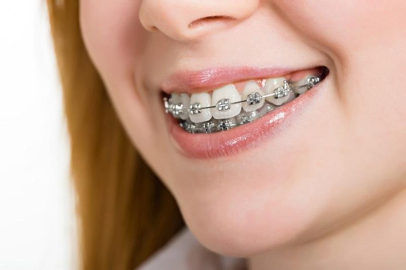 Niềng răng gây ra những cơn đau nhức ở giai đoạn đầu
