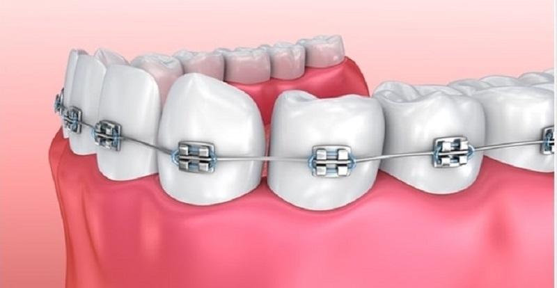 Tác hại của niềng răng điển hình - gây biến dạng khuôn mặt