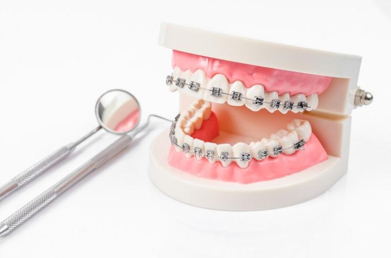 Để điều trị triệt để việc niềng răng bị tụt lợi, bệnh nhân cần thăm khám sớm