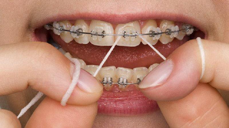 Cần đeo thun niềng răng trong bao lâu?