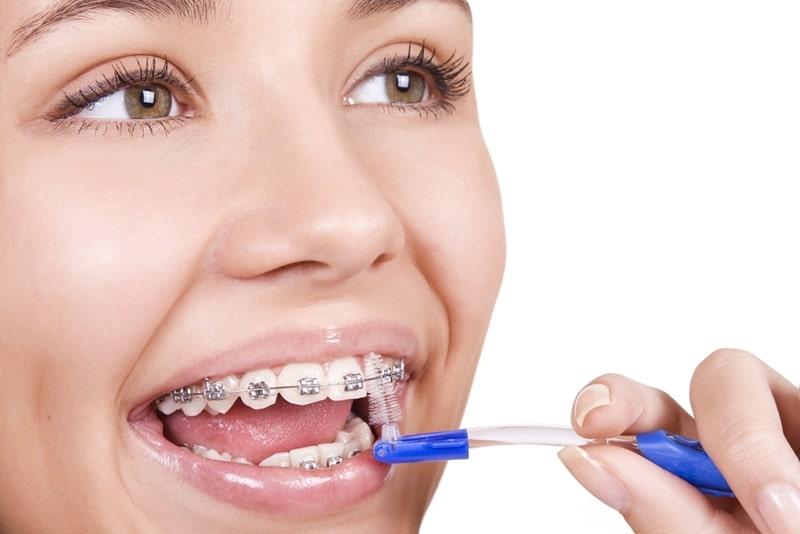 Một số lưu ý khi sử dụng thun niềng răng