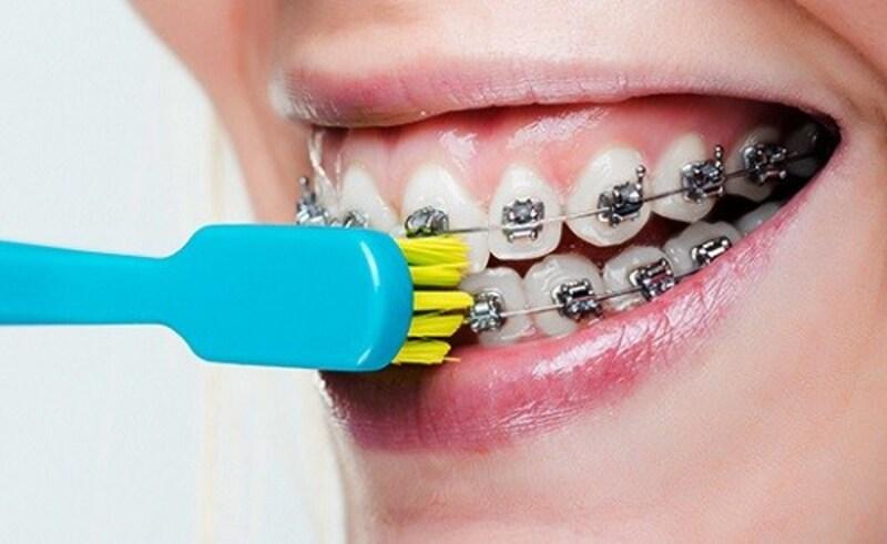 Việc chăm sóc răng miệng cho trẻ là điều cần thiết