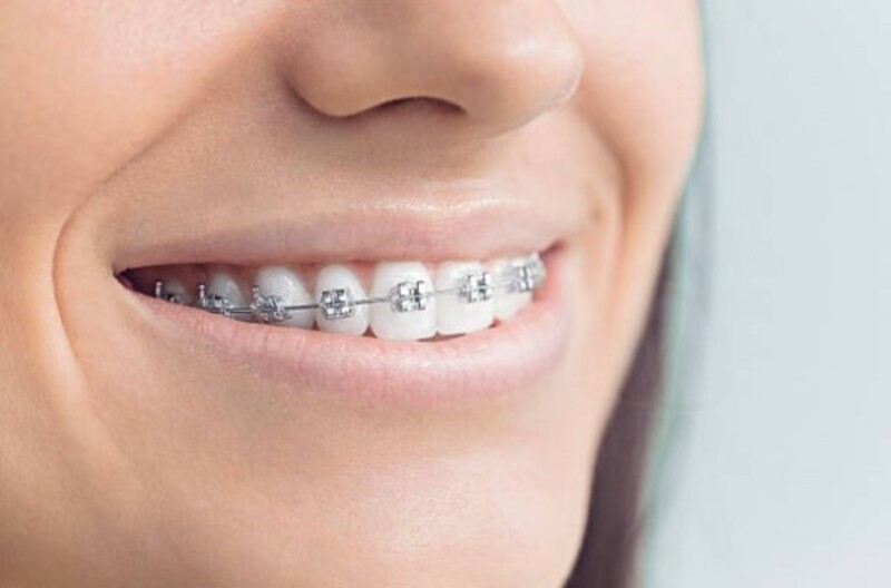 Có rất nhiều lợi ích khi lựa chọn niềng răng cho trẻ