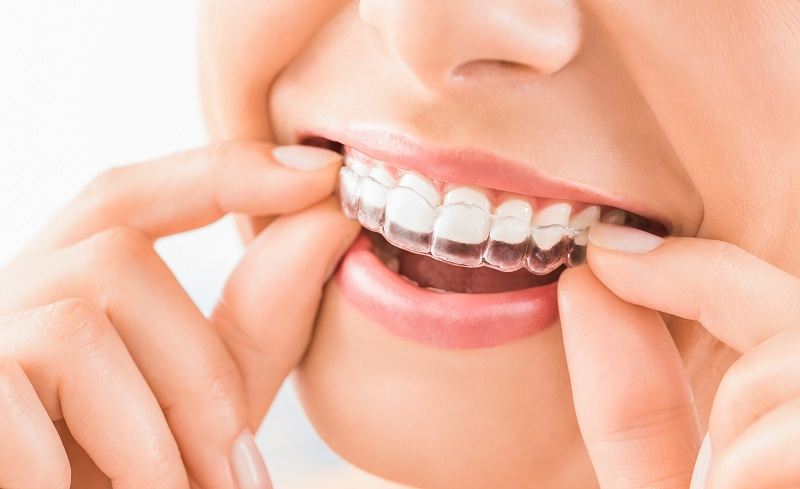 Niềng răng vô hình đem đến cho người đeo rất nhiều lợi ích