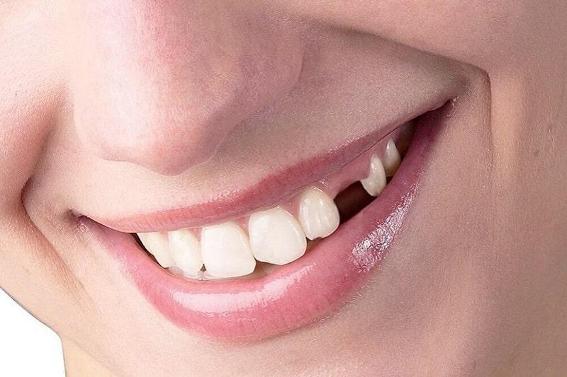 Mất răng là một trong những hệ lụy nghiêm trọng của áp xe nướu