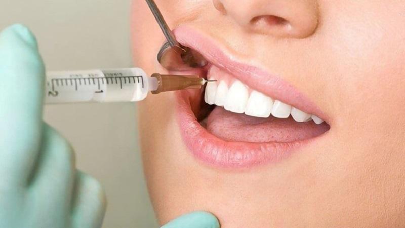 Nhổ răng là phương pháp sau cùng khi bác sĩ không thể can thiệp để giữ răng gốc