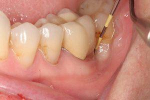Áp xe quanh chóp răng: Nguyên nhân, triệu chứng và cách điều trị triệt để