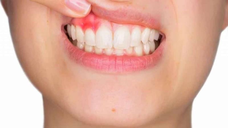 Áp xe răng biến chứng của nhiễm trùng chóp răng và sự phá hủy của các mô ở xung quanh răng