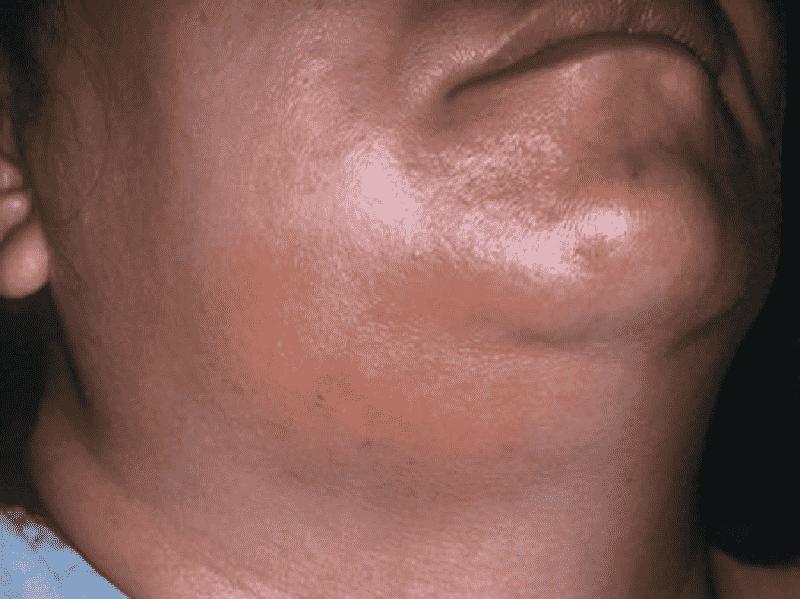 Viêm tấy lan rộng là một trong những biến chứng do áp xe răng gây ra.