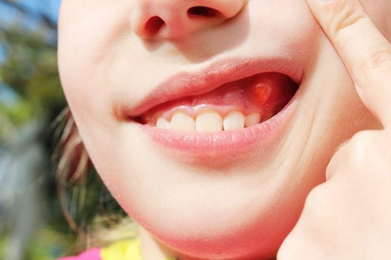 Áp xe răng trẻ em là hiện tượng xuất hiện một bọc nhỏ bằng hạt lạc, chứa đầy mủ bên trong