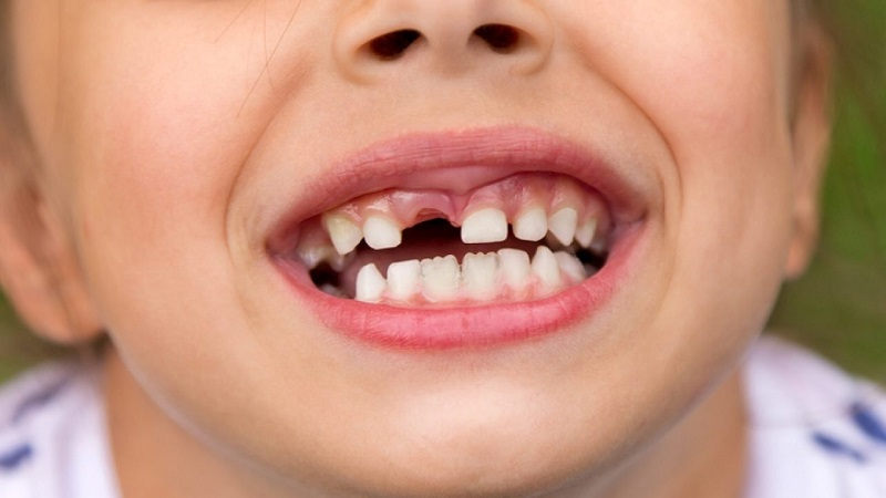 Mất răng là hệ lụy đáng tiếc của tình trạng viêm nha chu ở trẻ nhỏ