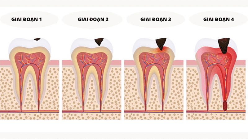 4 mức độ sâu răng