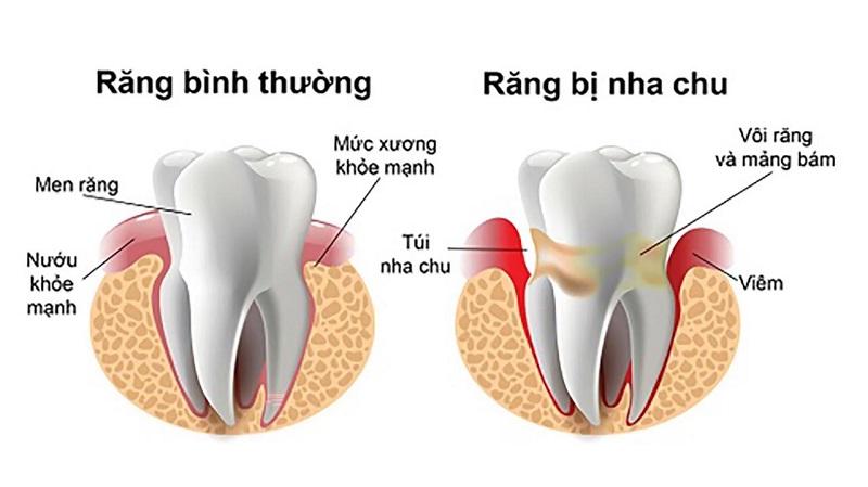 Nướu bao quanh răng bị tách dần ra tạo thành lỗ hổng