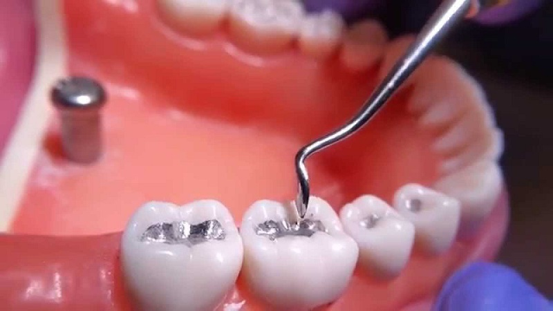Ê buốt răng sau khi trám do vết sâu chưa được nạo sạch