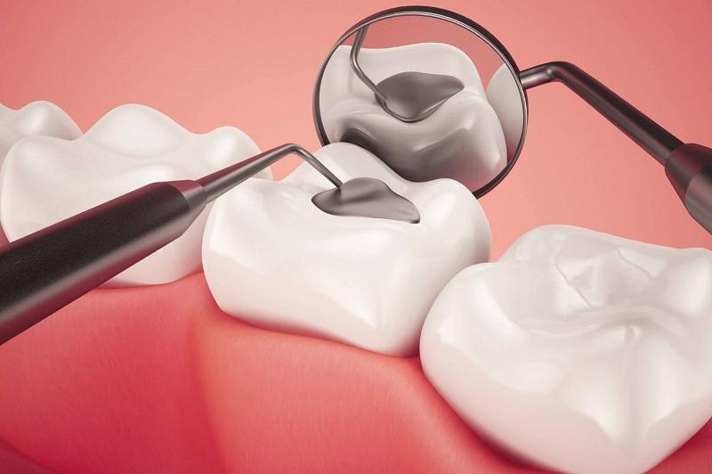 Trám răng được chỉ định dùng trong trường hợp răng bị tổn thương