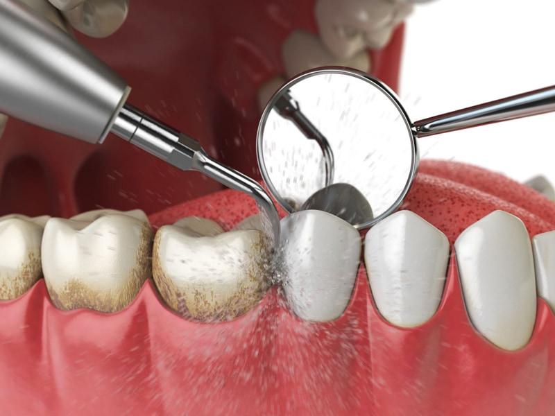 Vôi răng không chỉ ảnh hưởng đến thẩm mỹ mà nó còn ảnh hưởng nghiêm trọng đến sức khỏe răng miệng