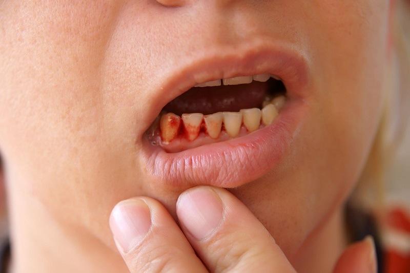 Hôi miệng chảy máu chân răng viêm lợi