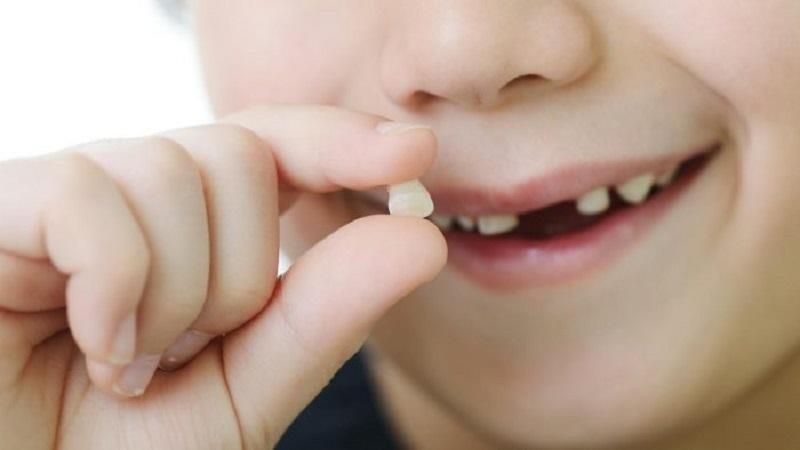 Việc chăm sóc răng sữa như thế nào sẽ là cơ sở để răng vĩnh viễn phát triển sau này