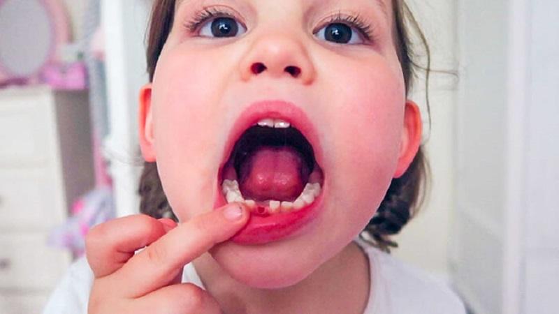 Cha mẹ tuyệt đối không tự ý nhổ răng sữa tại nhà cho bé nếu không có sự hướng dẫn của bác sĩ