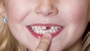 nhổ răng sữa còn sót chân răng
