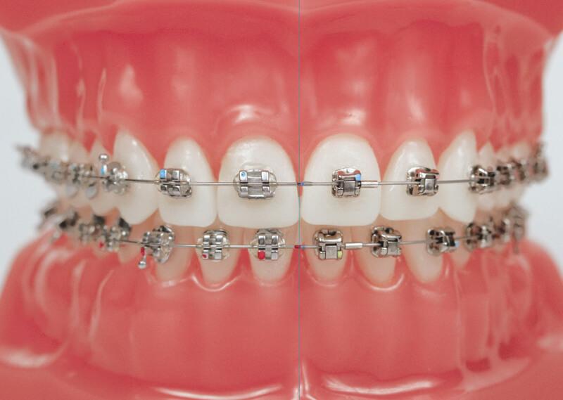 Tùy vào tình trạng răng miệng bác sĩ sẽ khuyên bạn có nên nhổ răng khi niềng răng hay không
