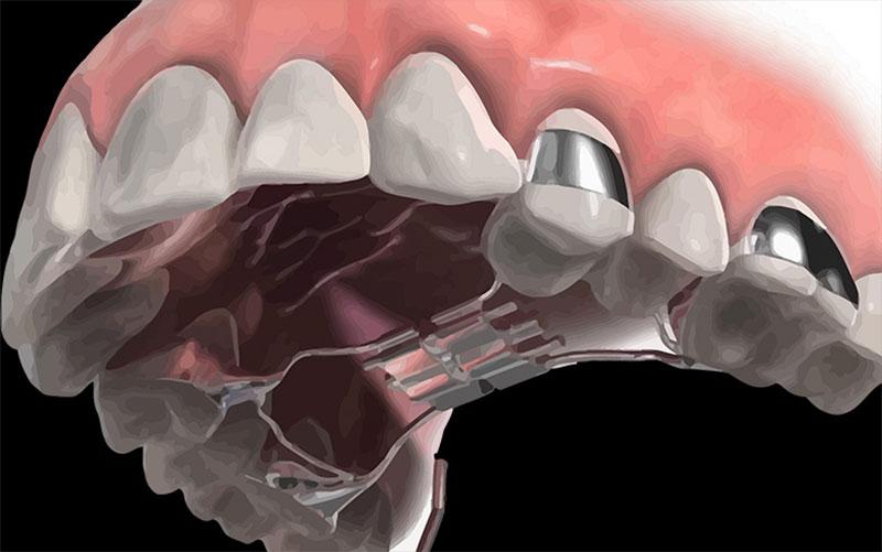 Có nhiều giải pháp để khắc phục không cần nhổ răng khi niềng răng