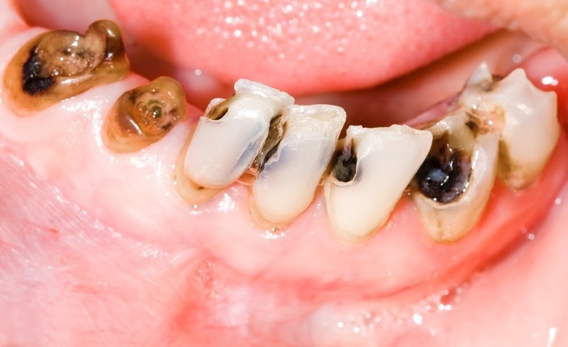 Sâu răng gây đau nhức và khó chịu, ảnh hưởng đến đời sống sinh hoạt của người bệnh