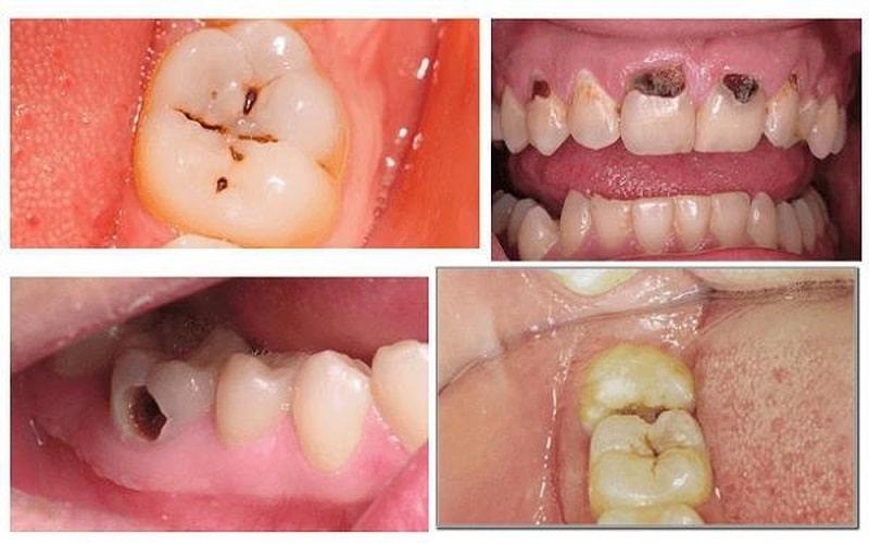 Căn cứ vào tình trạng của răng, bác sĩ phân chia sâu răng ra 3 loại để có phương pháp điều trị phù hợp