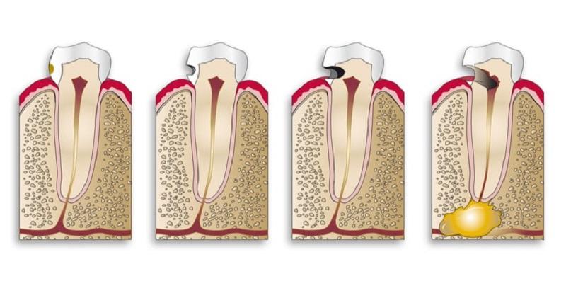 Quá trình sâu răng sẽ diễn ra trong thời gian tương đối dài với 4 giai đoạn chính