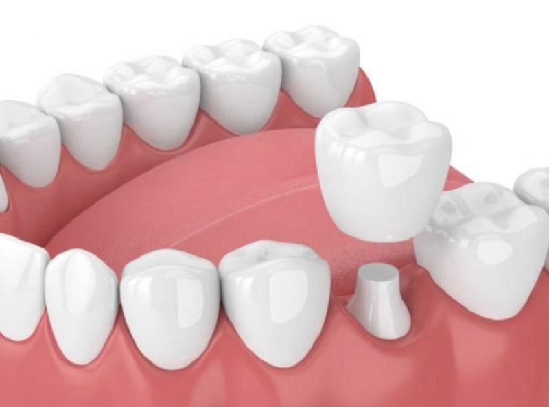 Bọc răng sứ là phương pháp tối ưu khi men răng của bạn bị hỏng nhiều và không thể trám được