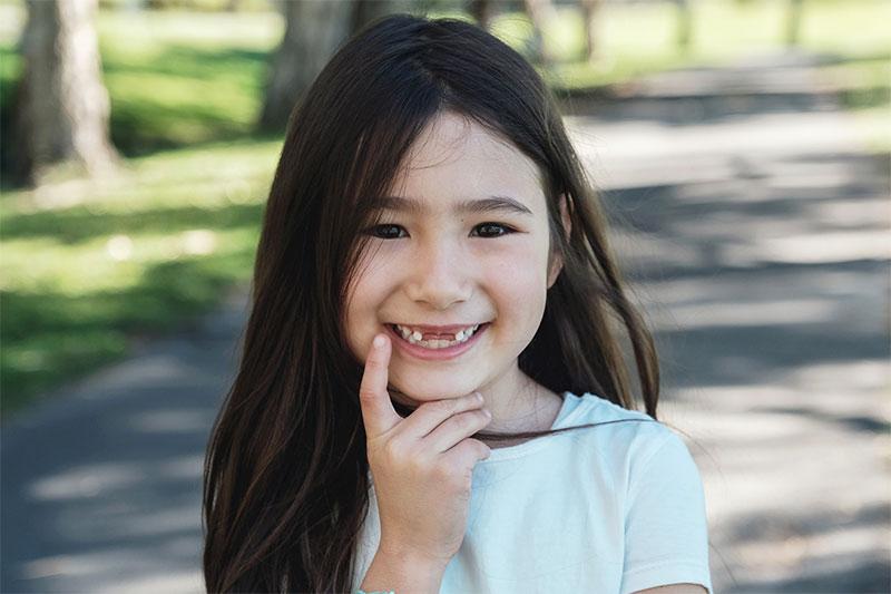 Mất răng sữa sớm cũng là nguyên nhân khiến răng trẻ mọc lẫy sau này
