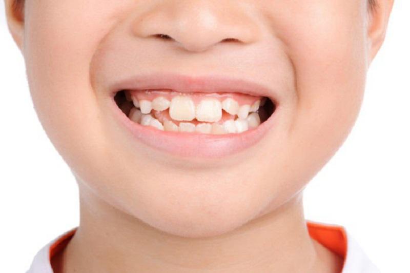 Răng mọc lẫy ảnh hưởng đến thẩm mỹ của trẻ rất nhiều