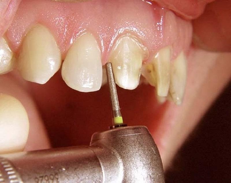 Trám răng được nhiều người bệnh lựa chọn để chữa sâu răng